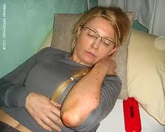 Юлия Тимошенко после избиения