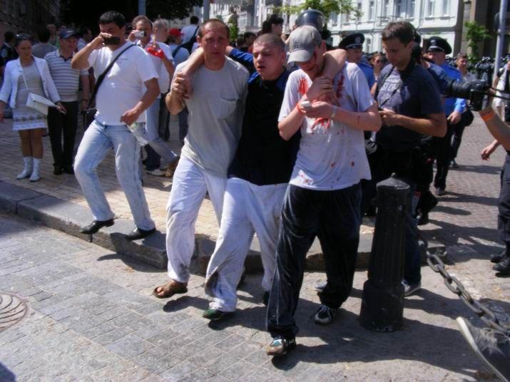 В Киеве избили журналистов и сторонников оппозиции