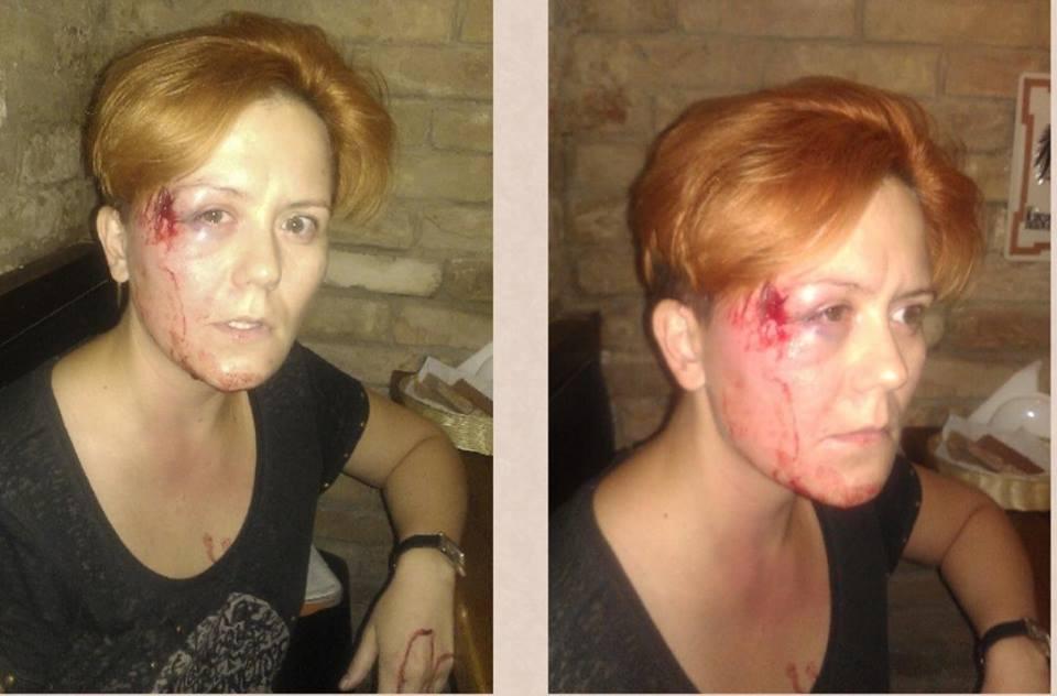 На Анну Гуцол также было совершено нападение