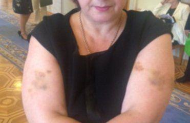 Олга Сикора показали синяки, оставшиеся после драки с охраной Азарова