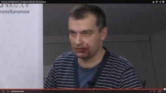 Избитый Дмитрий Гнап