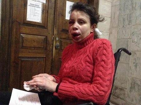 Татьяна Чорновол была зверски избита