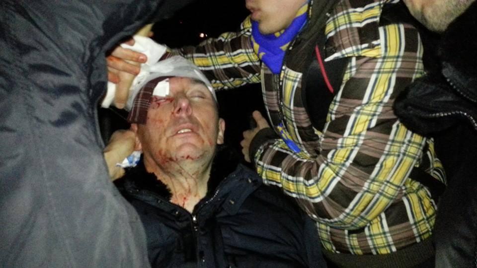 У Луценко - черепно-мозговая травма и сотрясение головы
