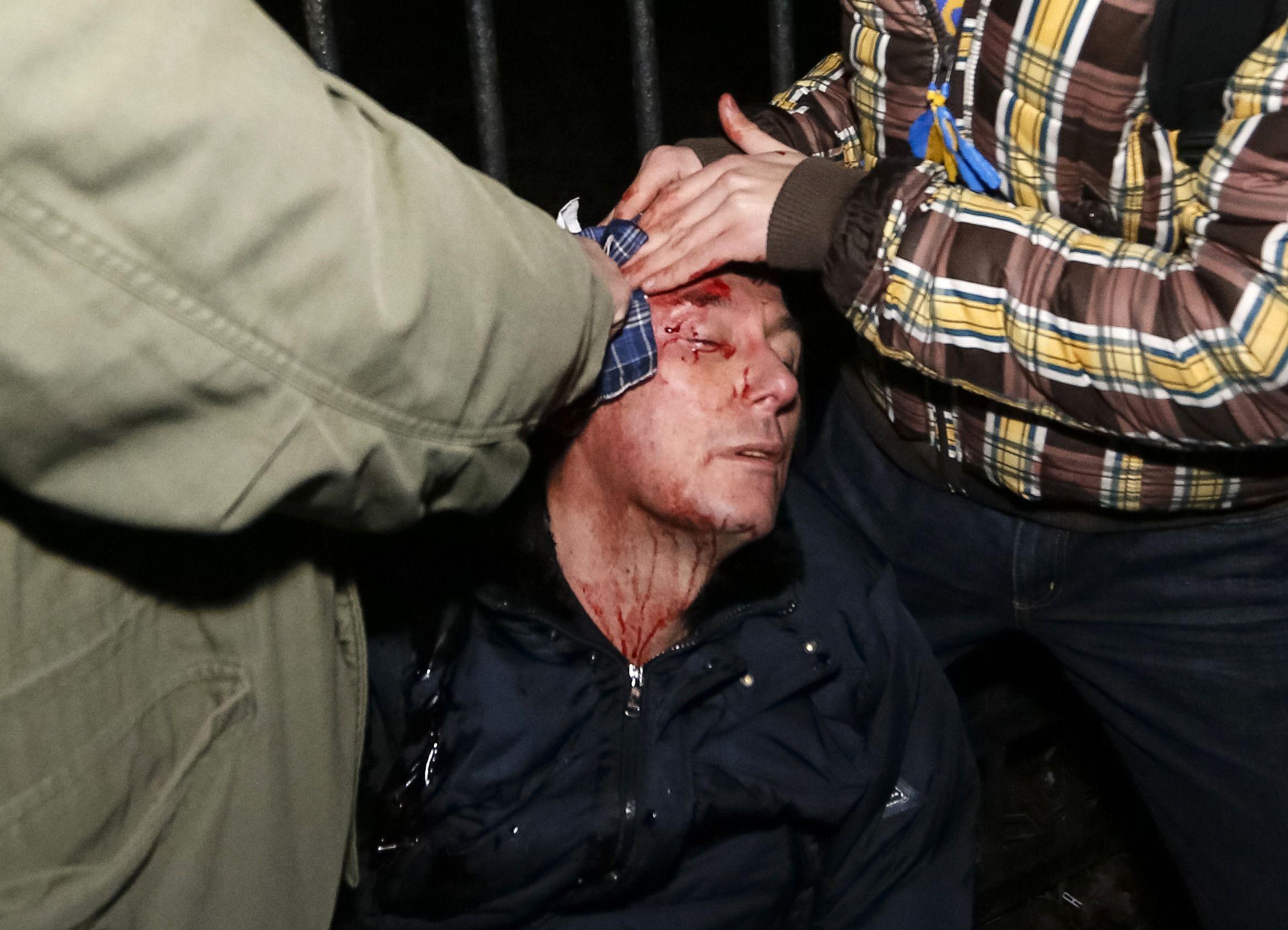 Луценко после избиения