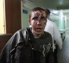 Один из задержанных в Запорожье