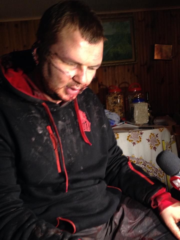 Дмитрий Булатов после избиения