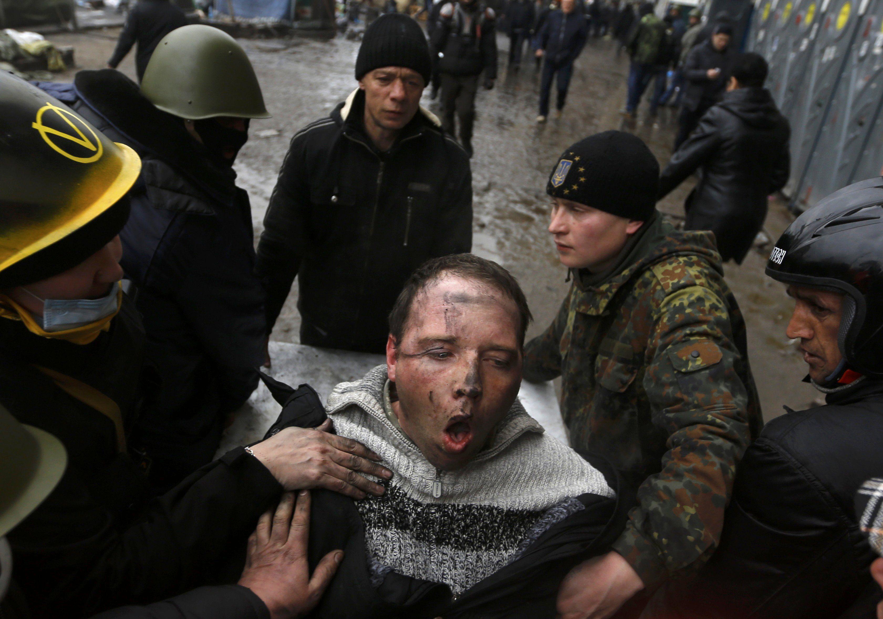 Раненный активист Майдана