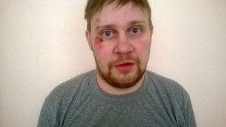 Перфильев опубликовал фото избитого оператора