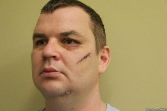 Булатову отрезали часть уха и порезали щеку