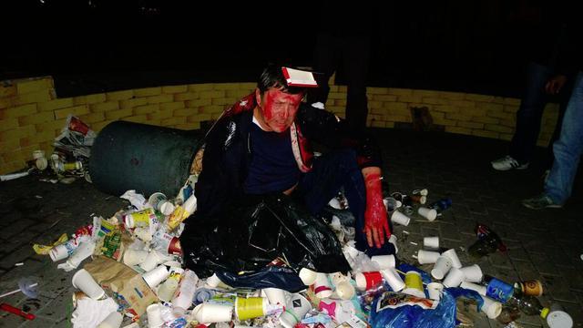 Пилипишина облили краской и бросили в мусорник