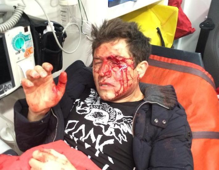 В Киеве жестоко избили шоумена Джеджулу