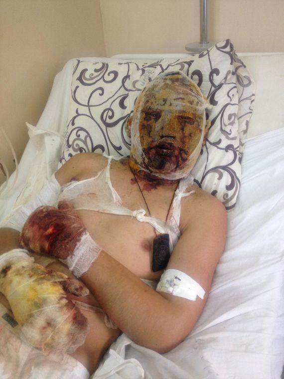 Обгоревший танкист из Бурятии в донецком госпитале