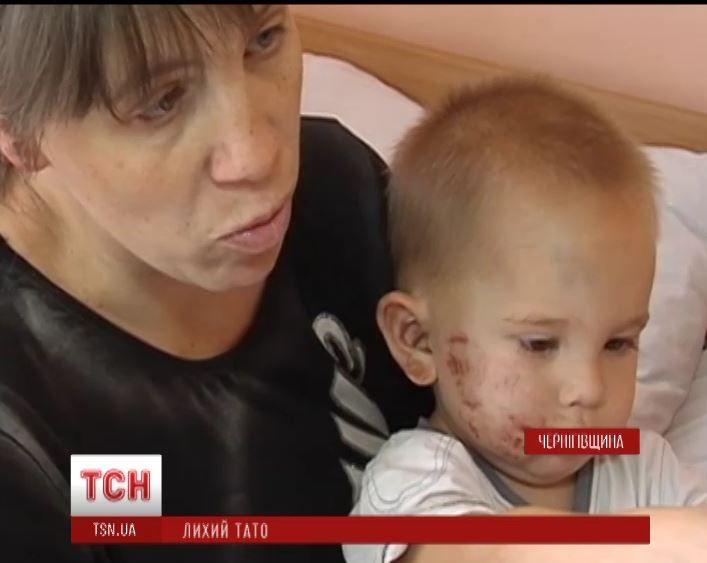 За жизнь двухлетнего мальчика борются медики.
