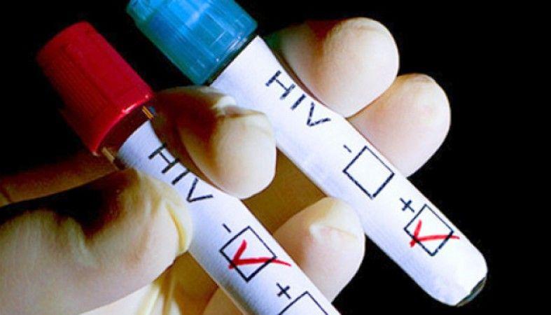 В российском Екатеринбурге объявили эпидемию ВИЧ