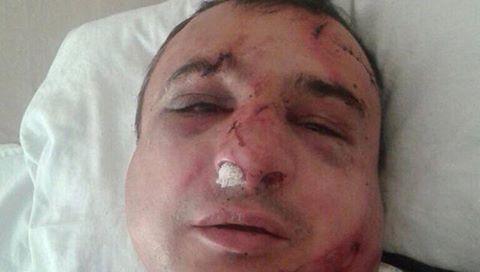 В Северодонецке избили сепаратиста Клинчаева
