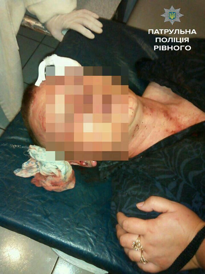 Азербайджанец жестоко избил участника АТО.