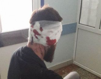 В Харькове избили депутата областного совета