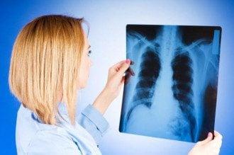 ВОЗ бьет тревогу - многие болеют резистентной формой туберкулеза