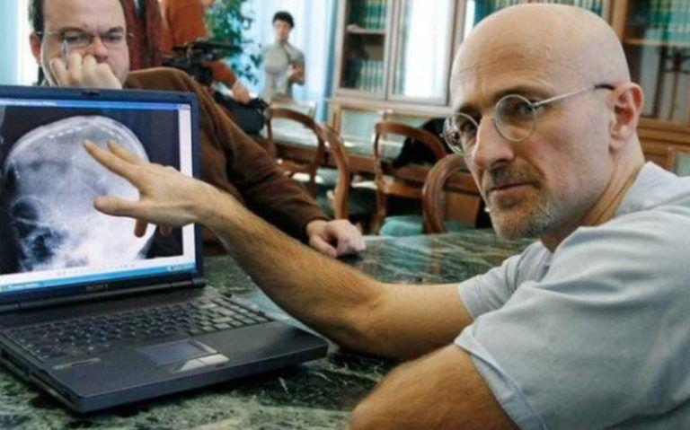 Канаверо заявил о первой в мире пересадке головы человека