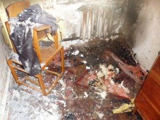 На Житомирщине двое малолетних детей попали в реанимацию из-за пожара