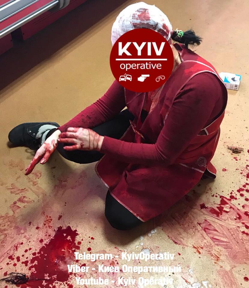 Жестокое нападение на магазин в Киеве, продавец госпитализирована с многочисленными травмами