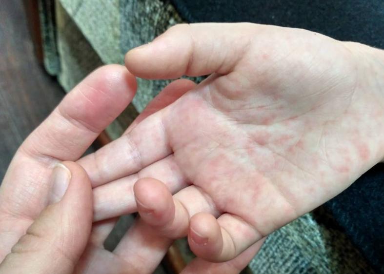 В Киеве дети заболели корью после посещения популярного цирка, сообщили интернет-пользователи