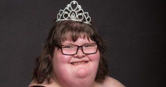 Несмотря на редкое заболевание, Анне удалось стать королевой красоты