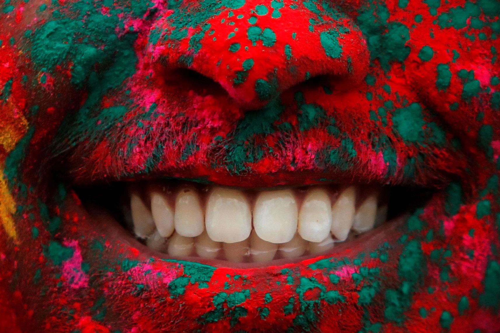 Стоматолог сказал, что самой опасной зубной болезнью в Украине является пародонтоз