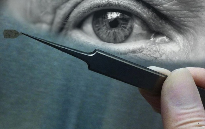 Ученые научились пересаживать искусственную сетчатку