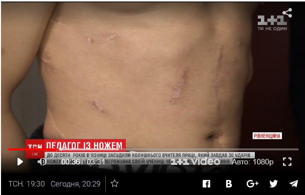 После нападения влюбленного в его девушку учителя у Ивана шрамы по всему телу.