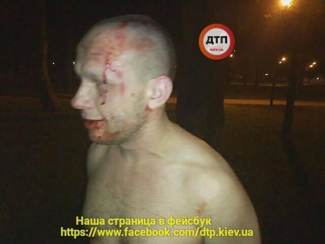 В Киеве во время массовой драки пьяный АТОшник бросил людям под ноги гранату, узнали журналисты