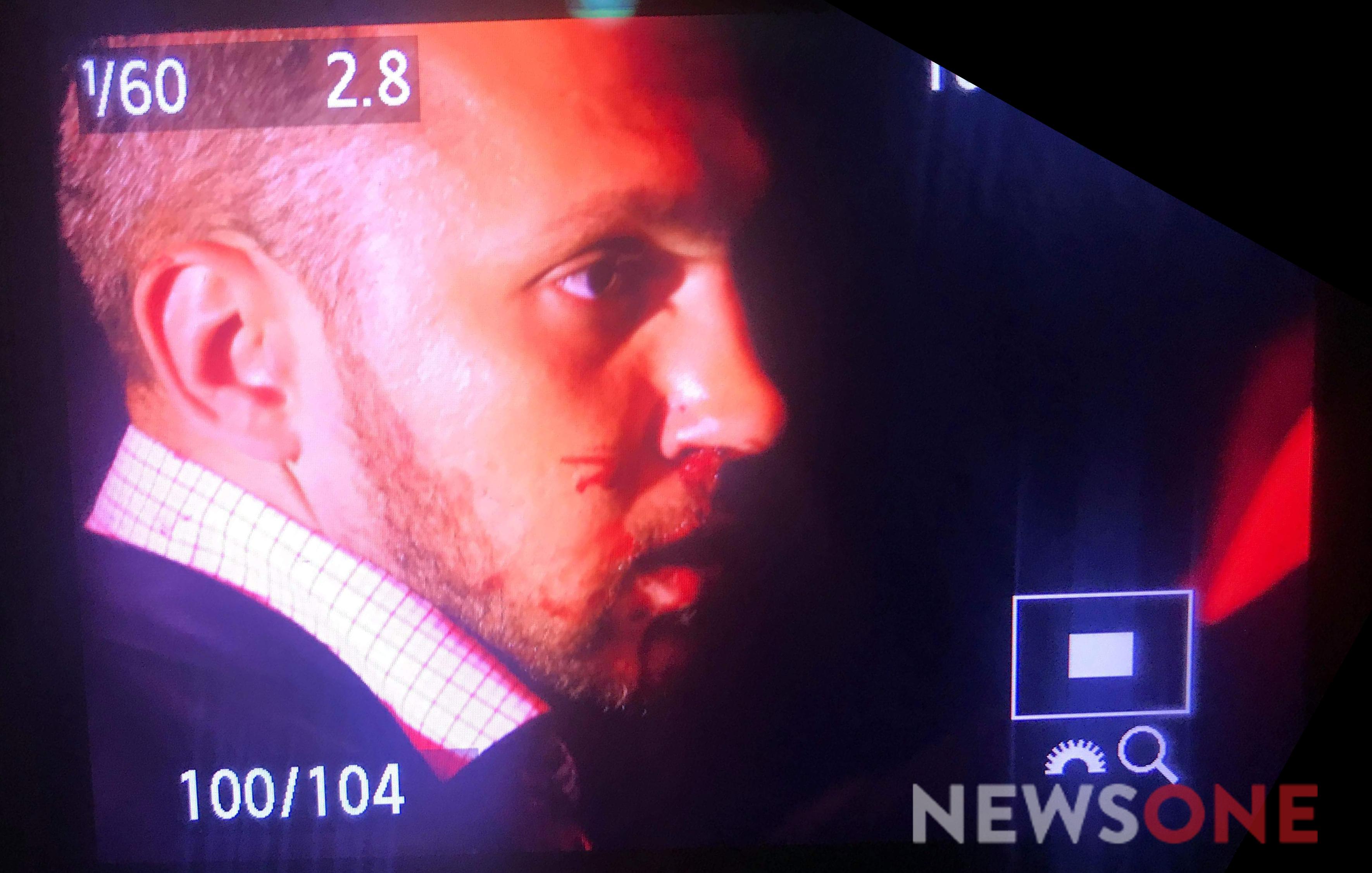 Дмитрию Линько бывший соратник разбил в кровь нос