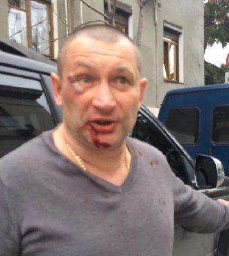 Игоря Криничного избили в Ялте за проукраинскую позицию