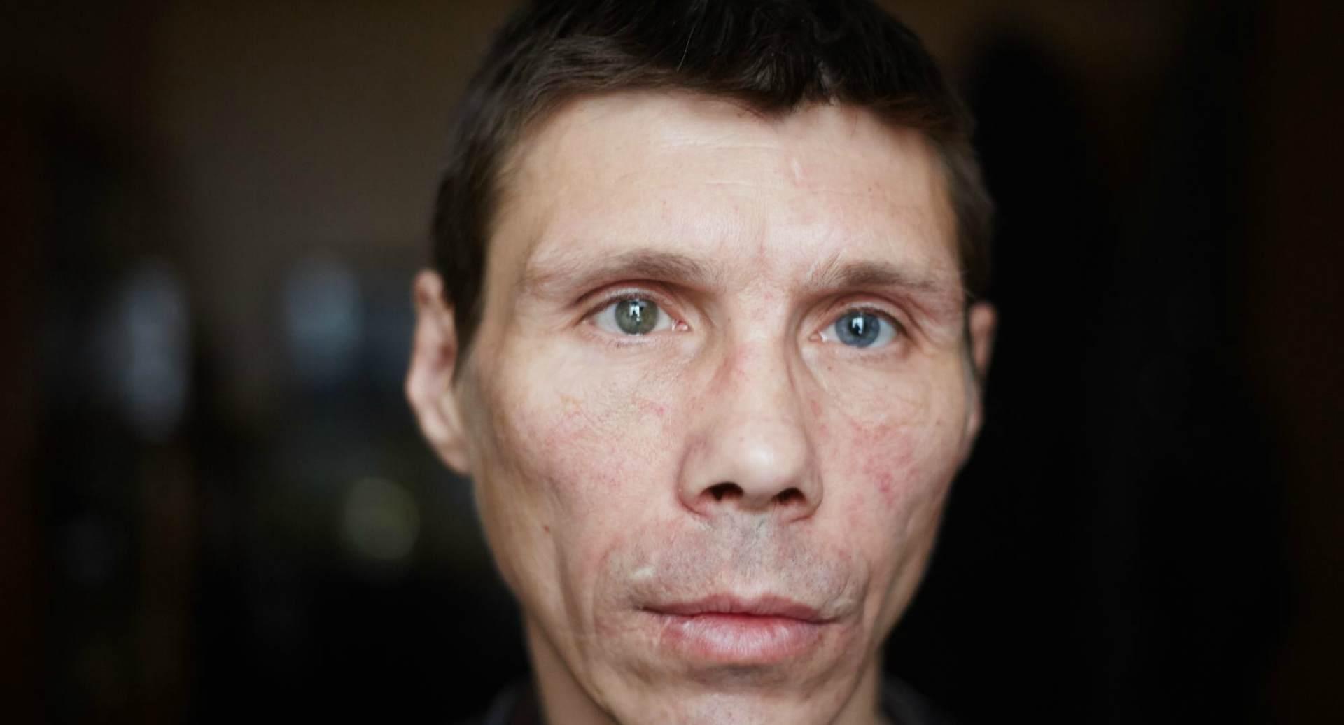 Врачи постановили, что Бурдин страдает хроническим психическим расстройством