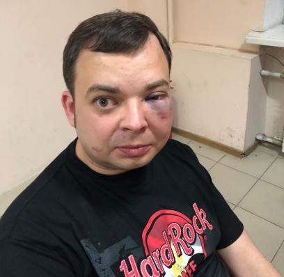 Александра Шуфрича избили в ресторане