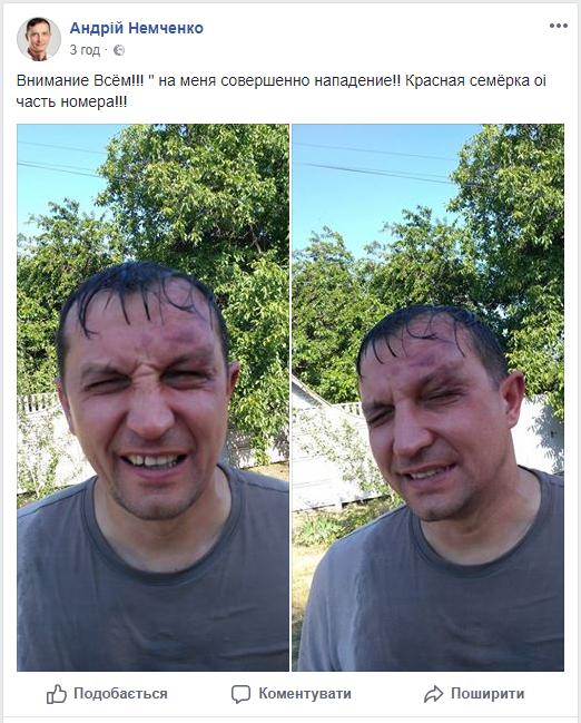В Кривом Роге напали на депутата горсовета, введен план