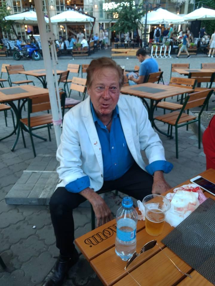 В Одессе избили Билла Уоррена.