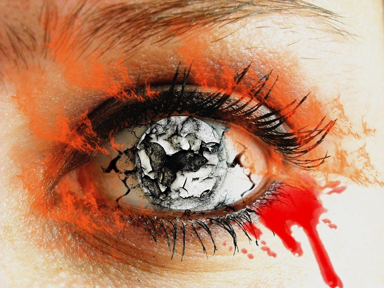 Какие болезни можно определить по глазам.