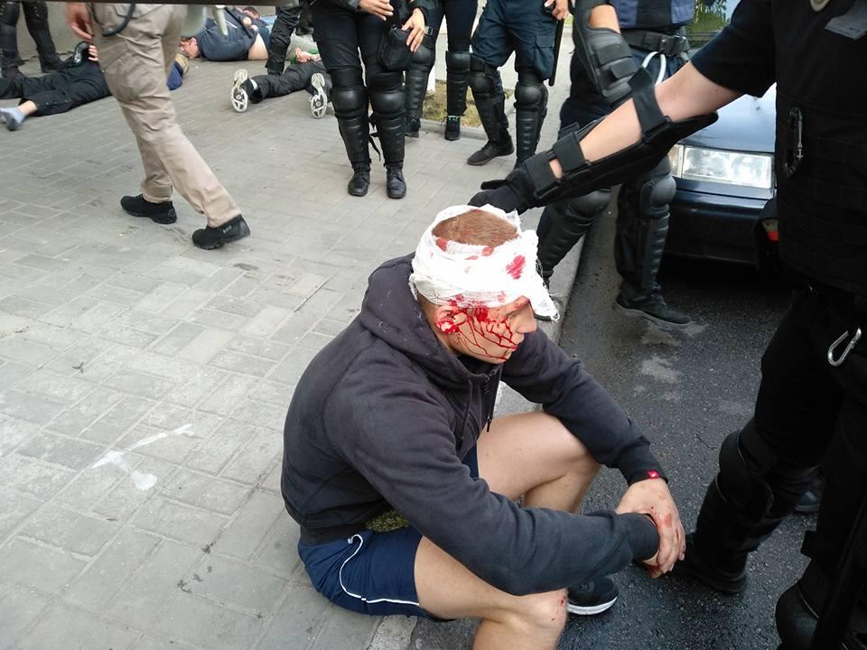КиевПрайд еще не начался, а уже есть жертвы: активисты показали, как их избила палками полиция. Фото