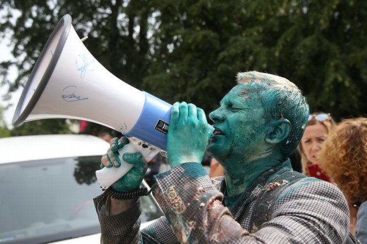 Облитый зеленкой Виталий Шабунин получил химические ожоги глаз