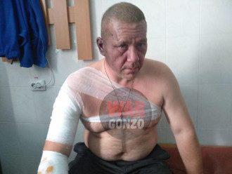В Донецке произошел взрыв, пострадали Игорь Хакимзянов и две женщины