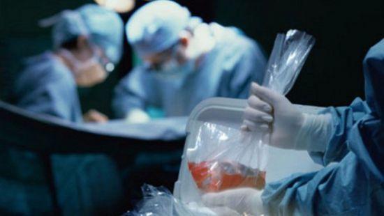 Вырезают, органы