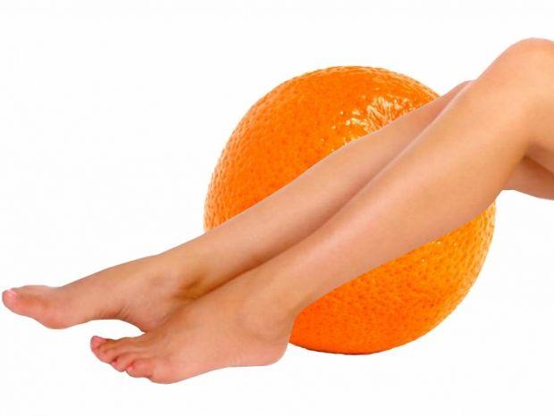 Как избавиться от целлюлита — Для избавления от целлюлита нужна диета, физические нагрузки и массажи, сообщила врач
