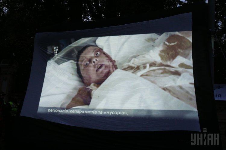 Активист сообщил, что облитая кислотой Екатерина Гандзюк терпела адские муки