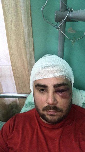 Активист получил тяжелые травмы / Фото: Facebook/Влад Погорелов