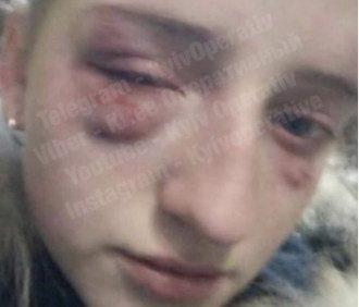 В Киеве жестоко избили школьницу / Скриншот/Киев Оперативный