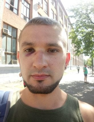 Cовершили жестокое нападение на открытого гея — ветерана АТО