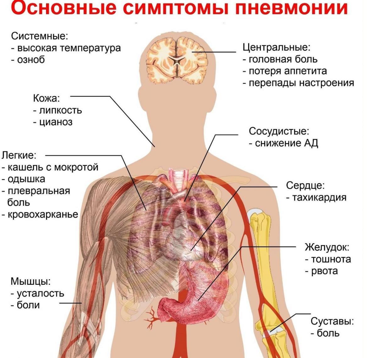 Пневмонія - симптоми