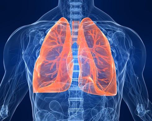 Рак легені