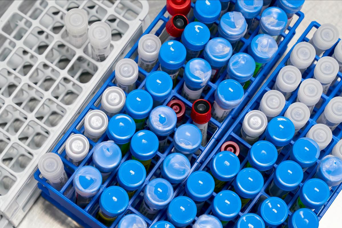 коронавірус,пробірки
